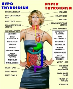 symptoms of thyroid imbalance